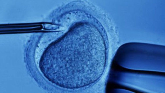 In-vitro-fertilization