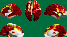 Red_and_green_brain