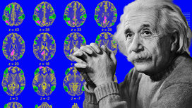 Einstein_physics_brain