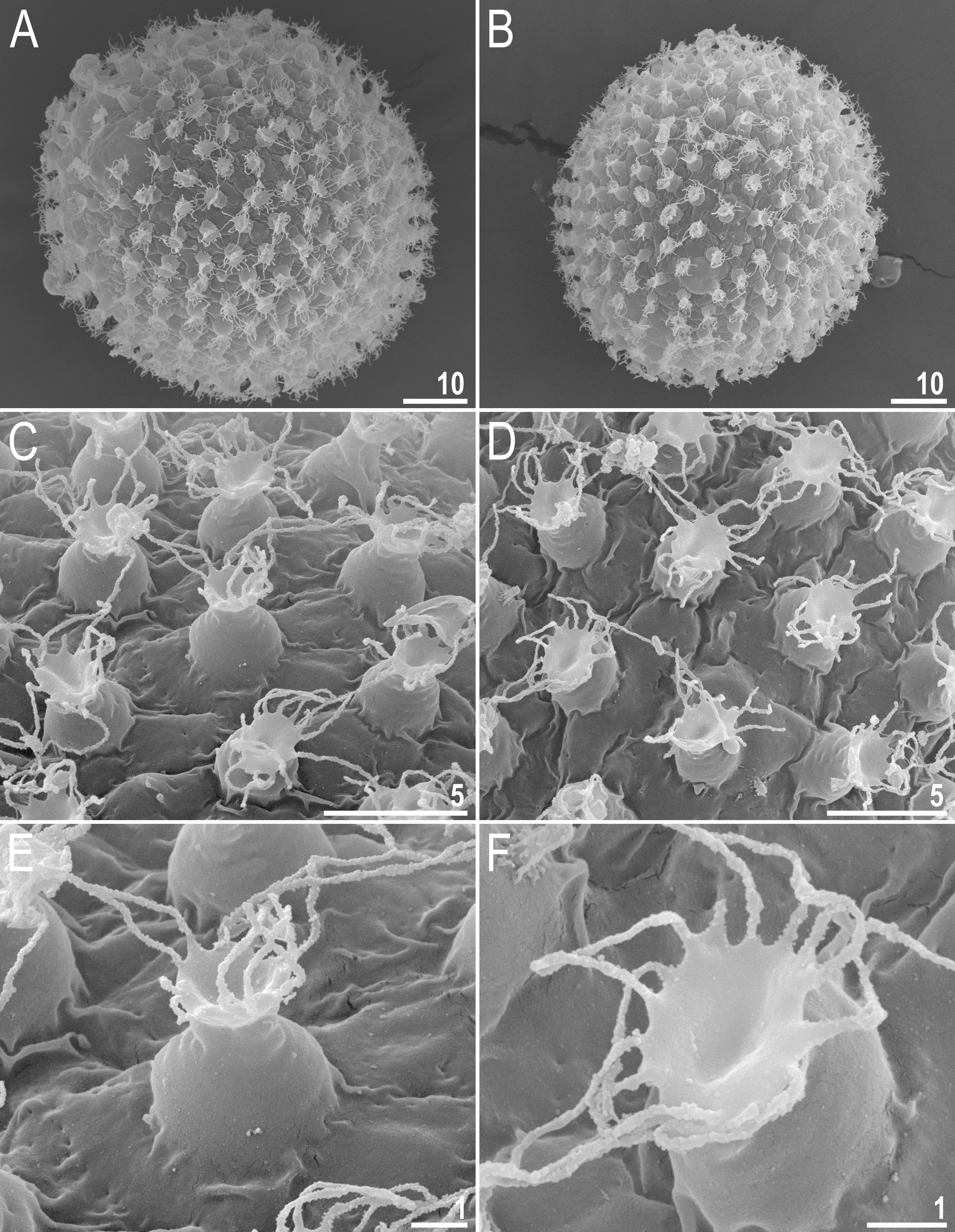 Fig 7. Macrobiotus shonaicus sp. nov.–egg chorion morphology seen in SEM. A–B–entire eggs with clearly visible flexible filaments on the egg processes; C–D–processes with filaments of various lengths and the surface between processes; and E–F–zoom on a single-egg process. Scale bars in μm. https://doi.org/10.1371/journal.pone.0192210.g007