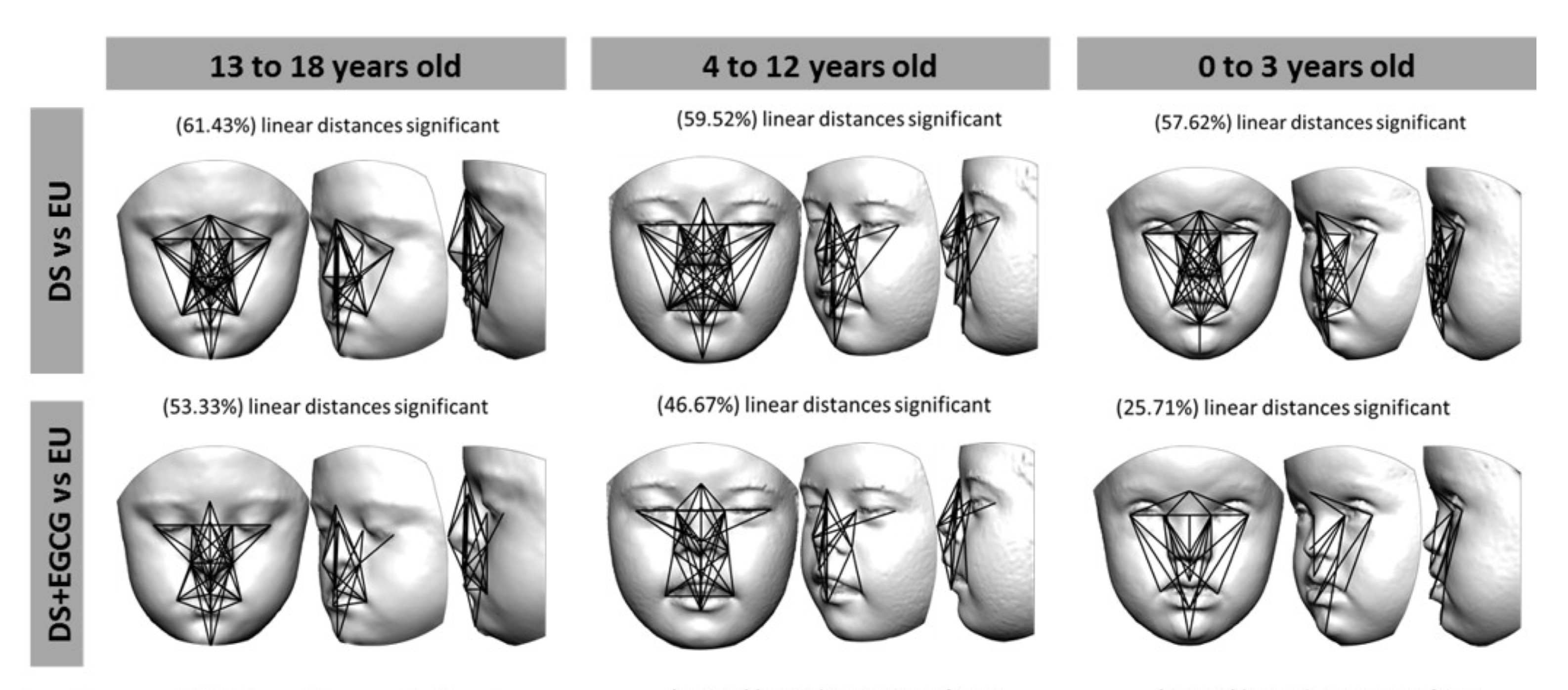 The Effect Of Green Tea On Down Syndrome Facial Features Big Think
