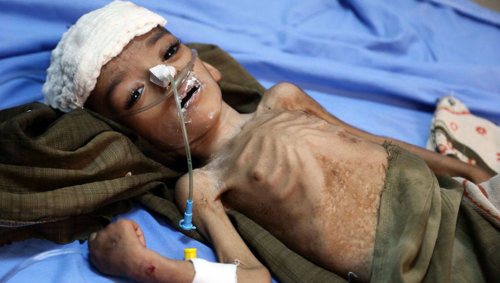 A malnourished Yemeni child